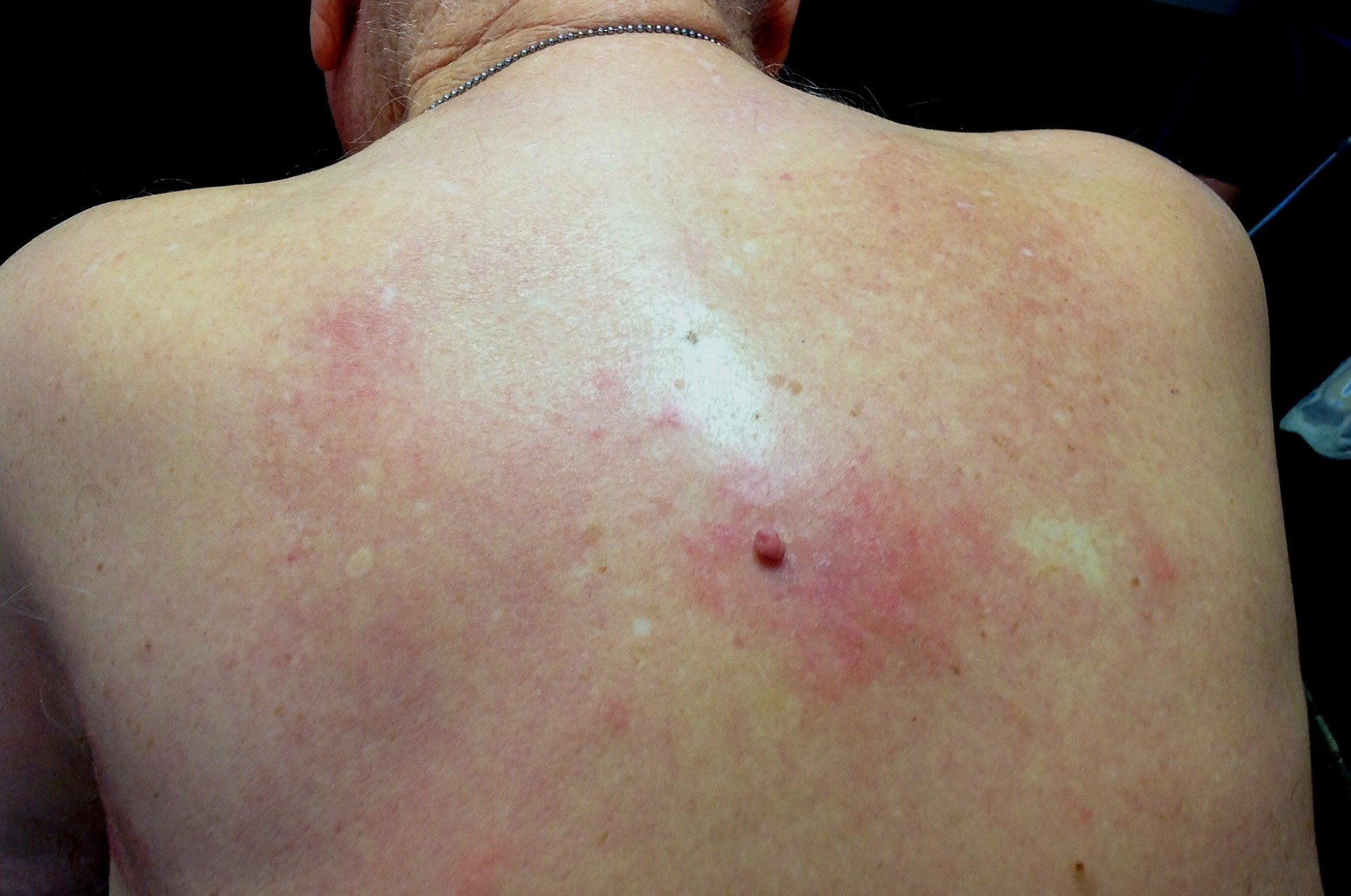 Hyperpigmentation of the Upper Back