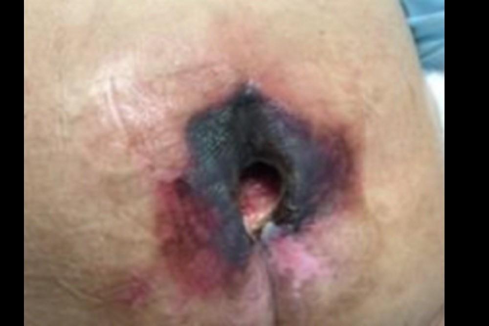 Kennedy Terminal Ulcer