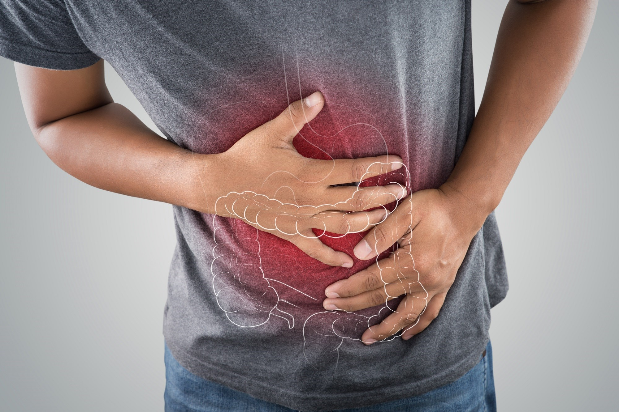 Numerous gastrointestinal pathologies are associated with McCune-Albright syndrome.