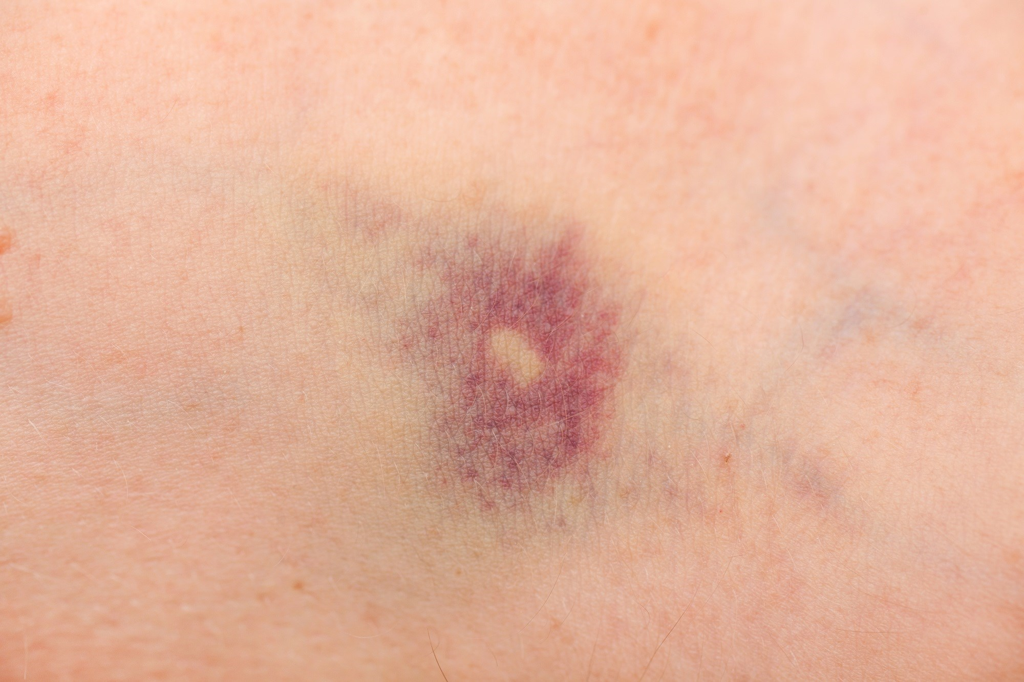Case Study: Abdominal Pain, Malaise, and a Bruise on the Leg