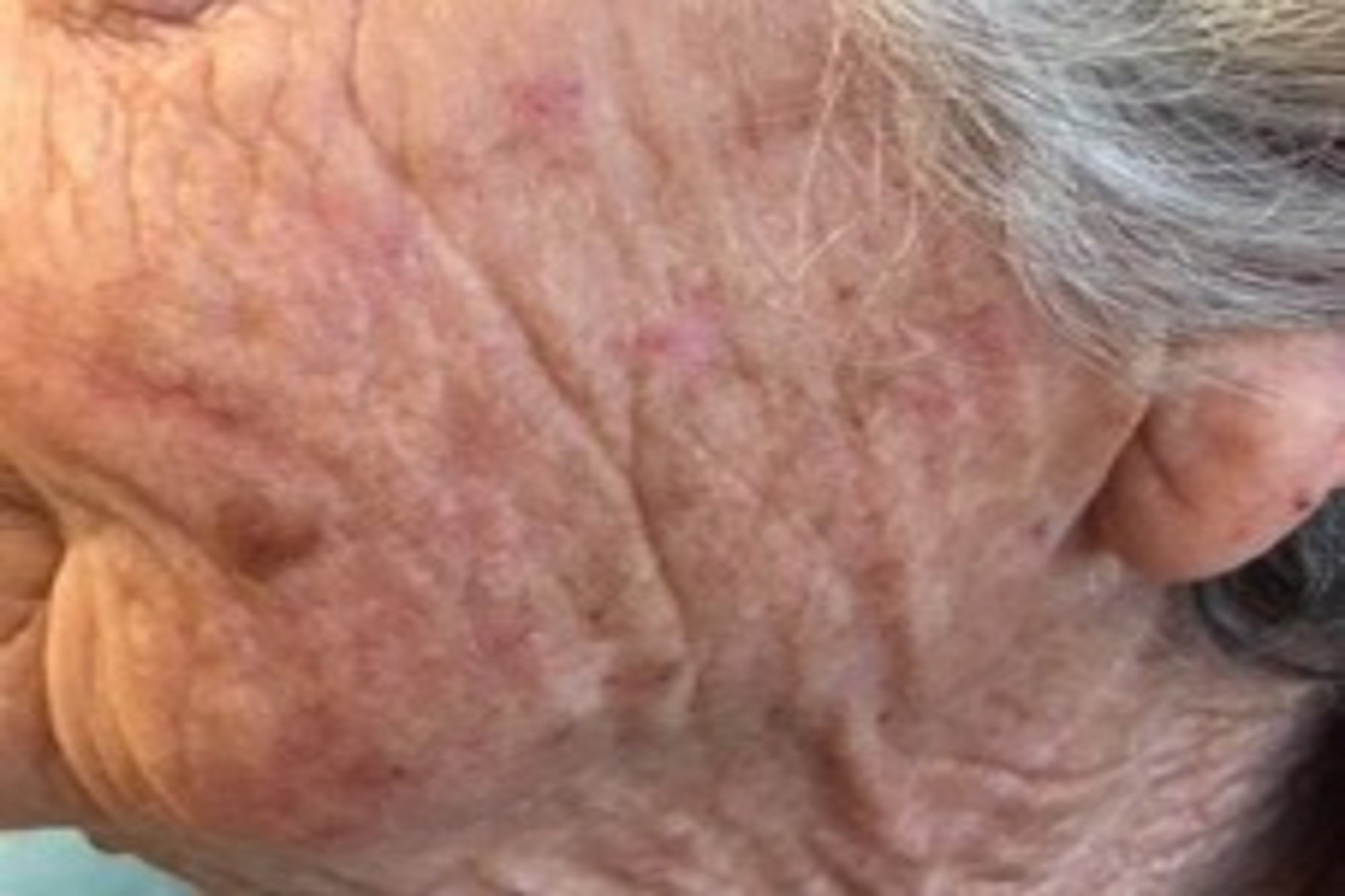 Actinic Keratoses: Field Cancerization and Photodynamic Therapy
