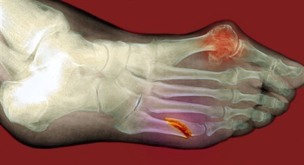 Serum Estradiol Levels Predictive of Fractures During Menopausal Transition