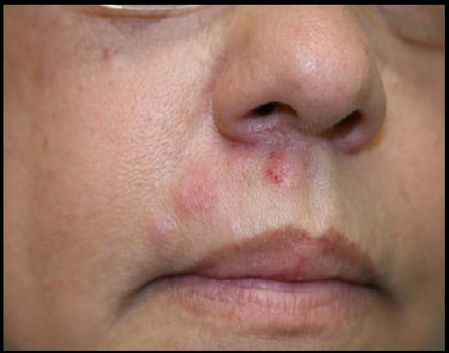 Facial sysptoms of shingles