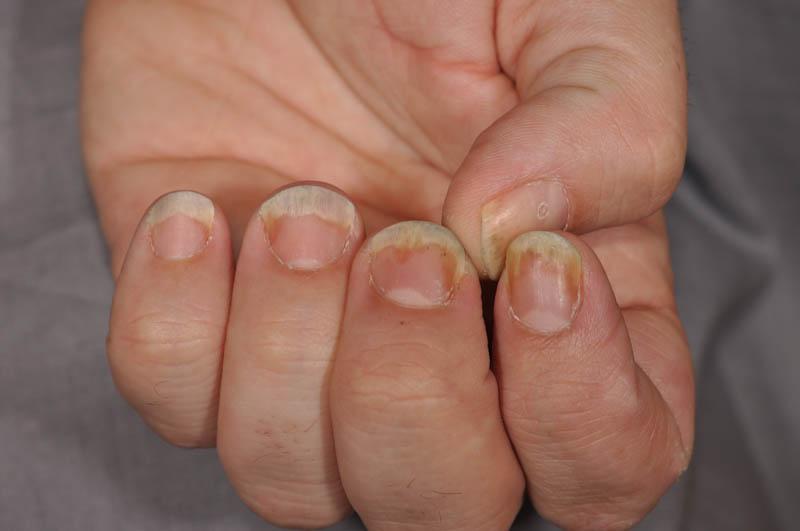 Nail Unit Psoriasis (Nail Psoriasis) - The Clinical Advisor