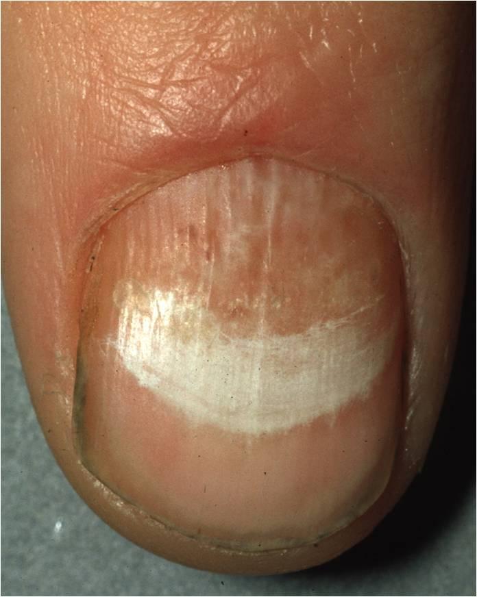 Onychomycosis  Tinea Unguium  Nail Fungal Infection