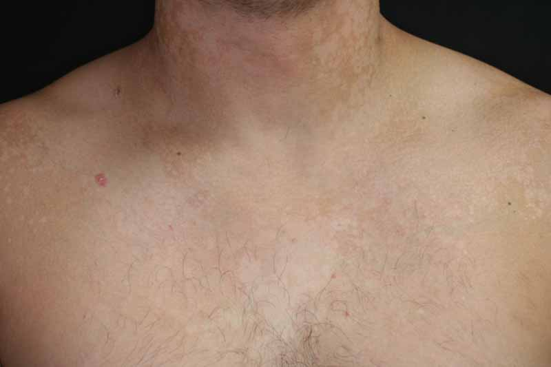 tinea versicolor pityriasis versicolor the clinical