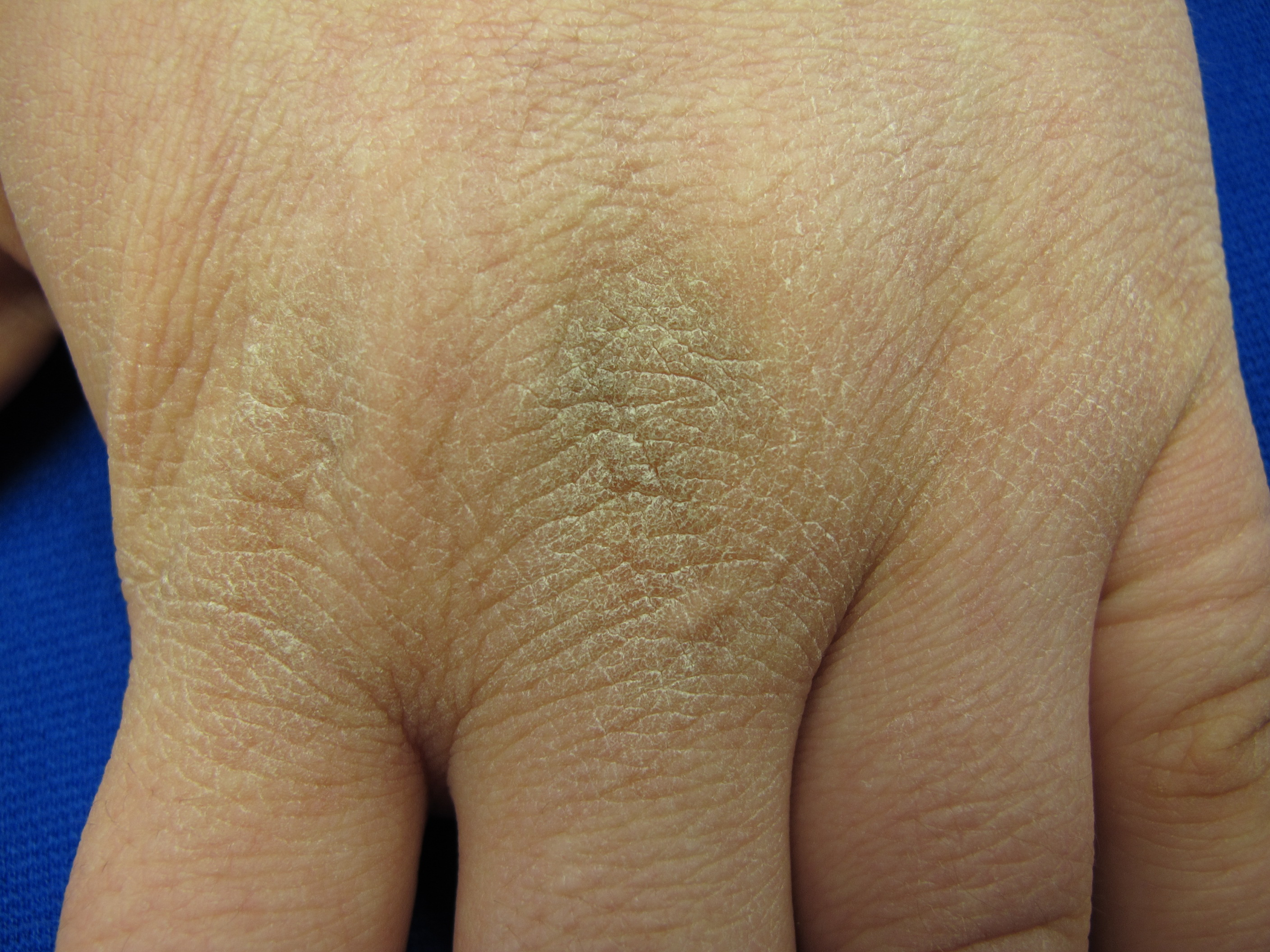 Acanthosis nigricans - The Clinical Advisor