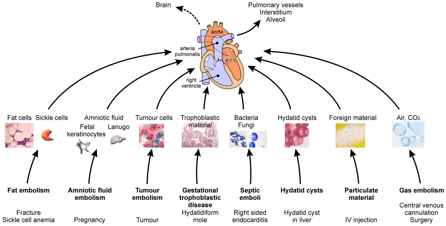 Nonthrombotic pulmonary embolism air amniotic fluid fat tumor the clinical effects and pathogenesis of ntpes are more complex than the simple mechanical obstruction depending on the specific type some emboli may ccuart Images