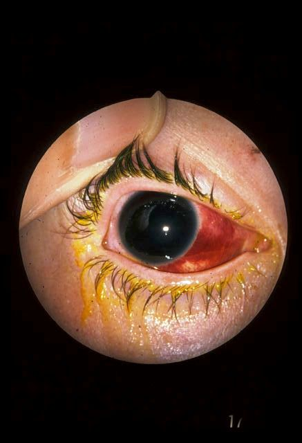 hyphema pictures hyphema the clinical advisor 1319