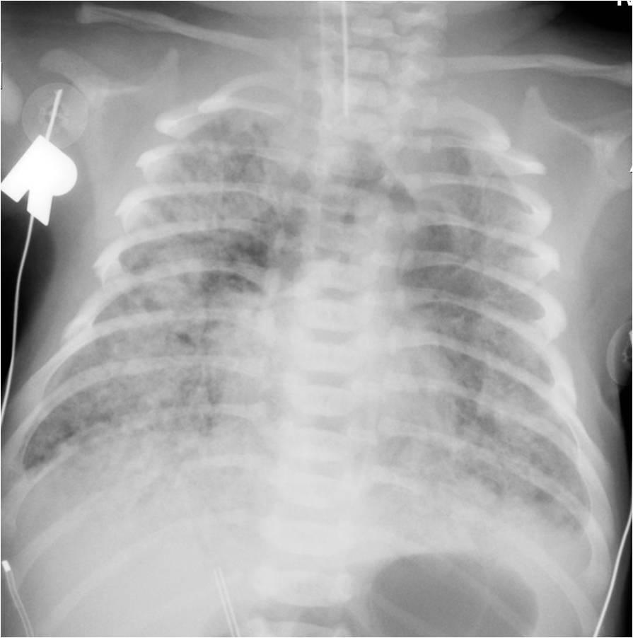 causes of meconium aspiration Meconium aspiration, also known as meconium aspiration syndrome (mas) or neonatal aspiration of meconium is a medical condition  causes of meconium aspiration.
