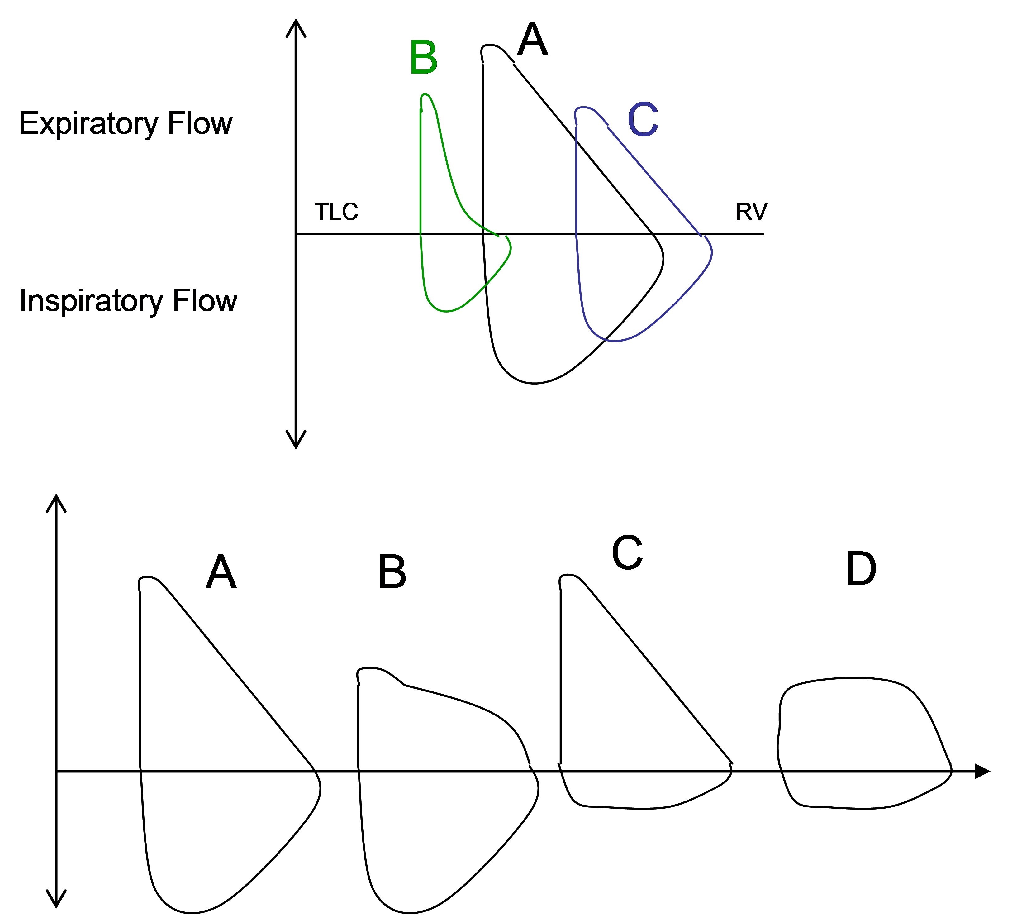 Idealized flow volume loops Top panel: (A) Normal flow volume loop, (B)  flow volume loop demonstrating obstruction, (C) Flow volume loop typically  seen in ...