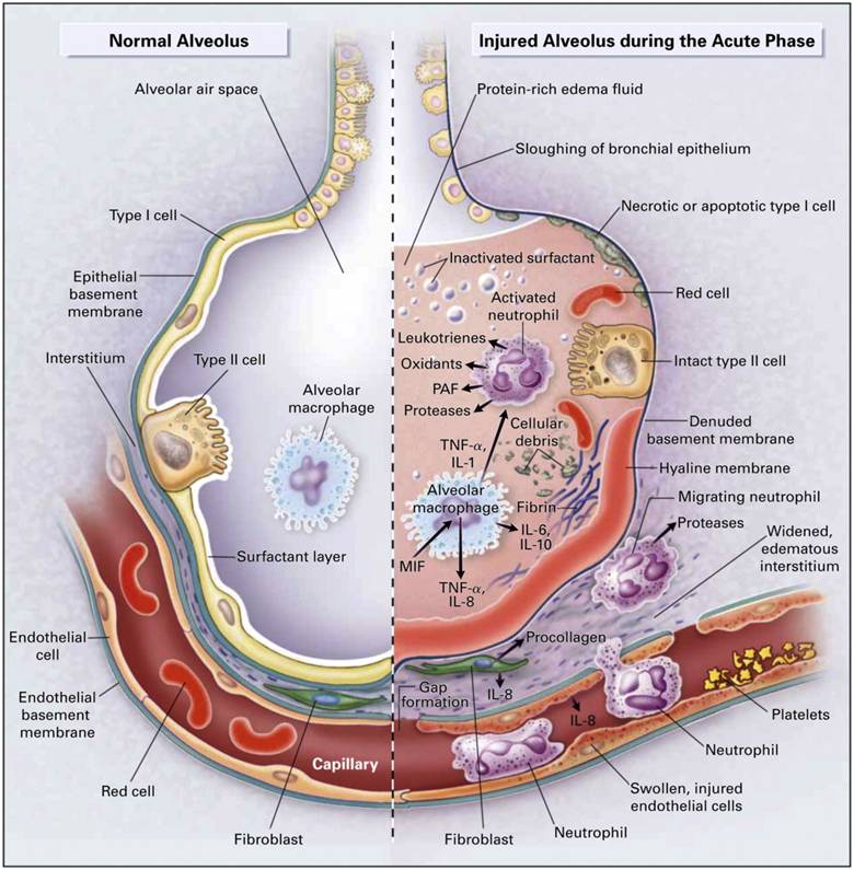Acute Respiratory Distress Syndrome; Acute Hypoxemic. Before And After Botox Forehead. College Classes For Accounting. Record Management Courses Drug Detox Facility. Dental Practice Marketing Plan. Two Types Of Life Insurance Web Site Hosting. Installing A New Toilet Why Move To The Cloud. Laser Hair Removal Nyc Groupon. Limousine Service In San Francisco Ca