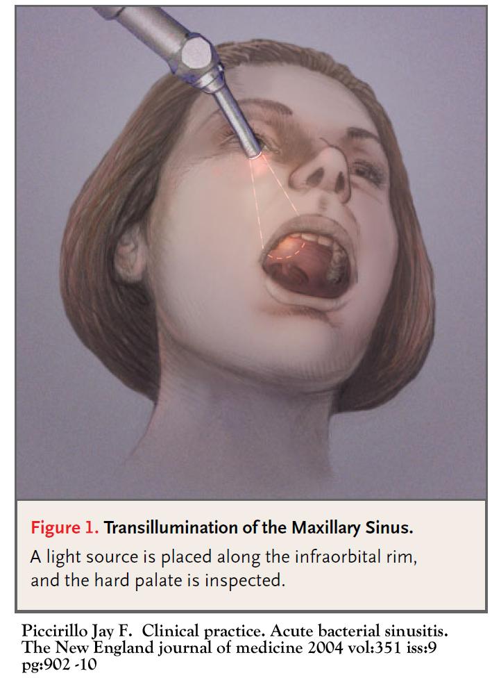 Sinusitis - The Clinical Advisor