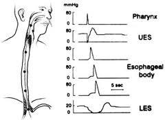 Intraesophageal ph study