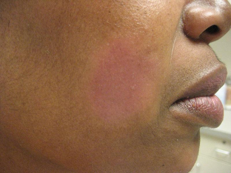 Follicular Mucinosis Alopecia Mucinosa The Clinical