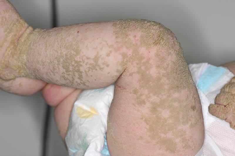 Epidermolytic Hyperkeratosis Face Bullous congenital ich...