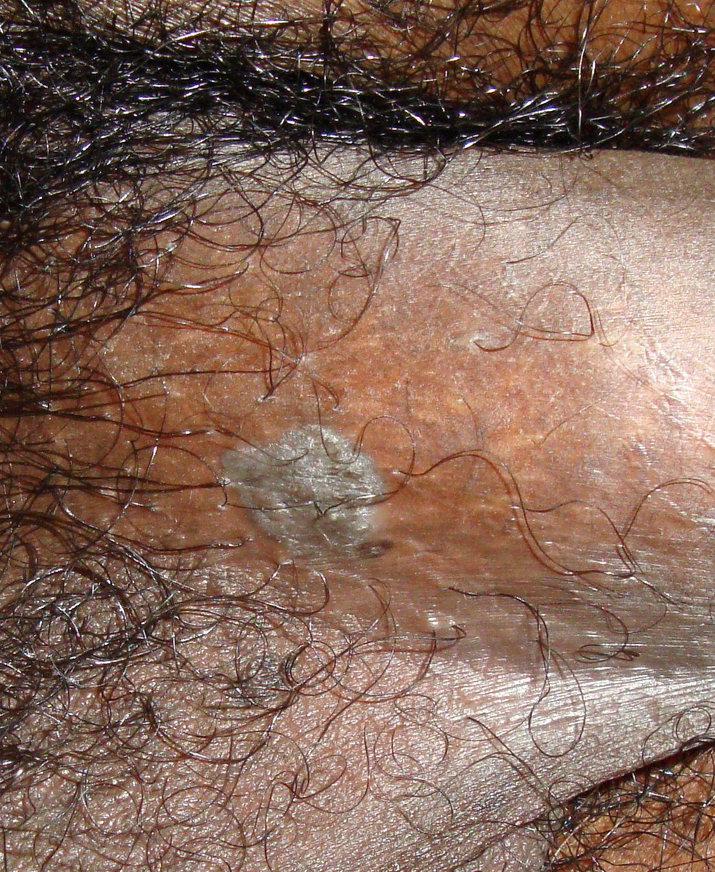 Condyloma Acuminatum Genital Warts The Clinical Advisor