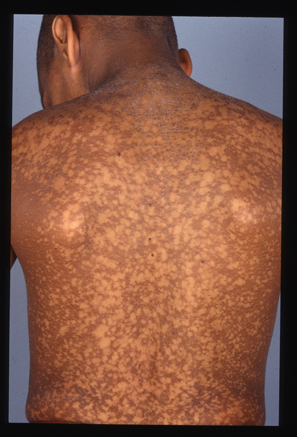 Dyskeratosis Congenita The Clinical Advisor