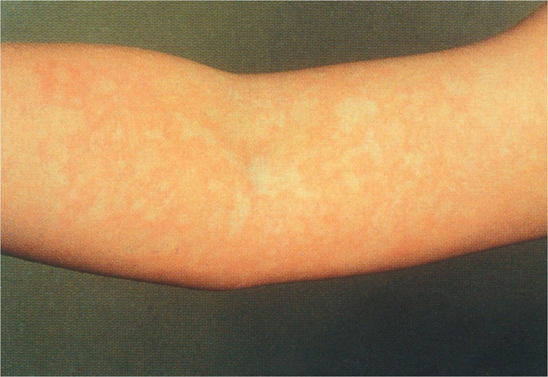 Pictures of bug bites on arms